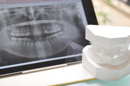 歯科医師によるレントゲンのチェック