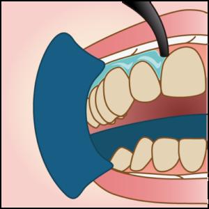 歯肉の保護